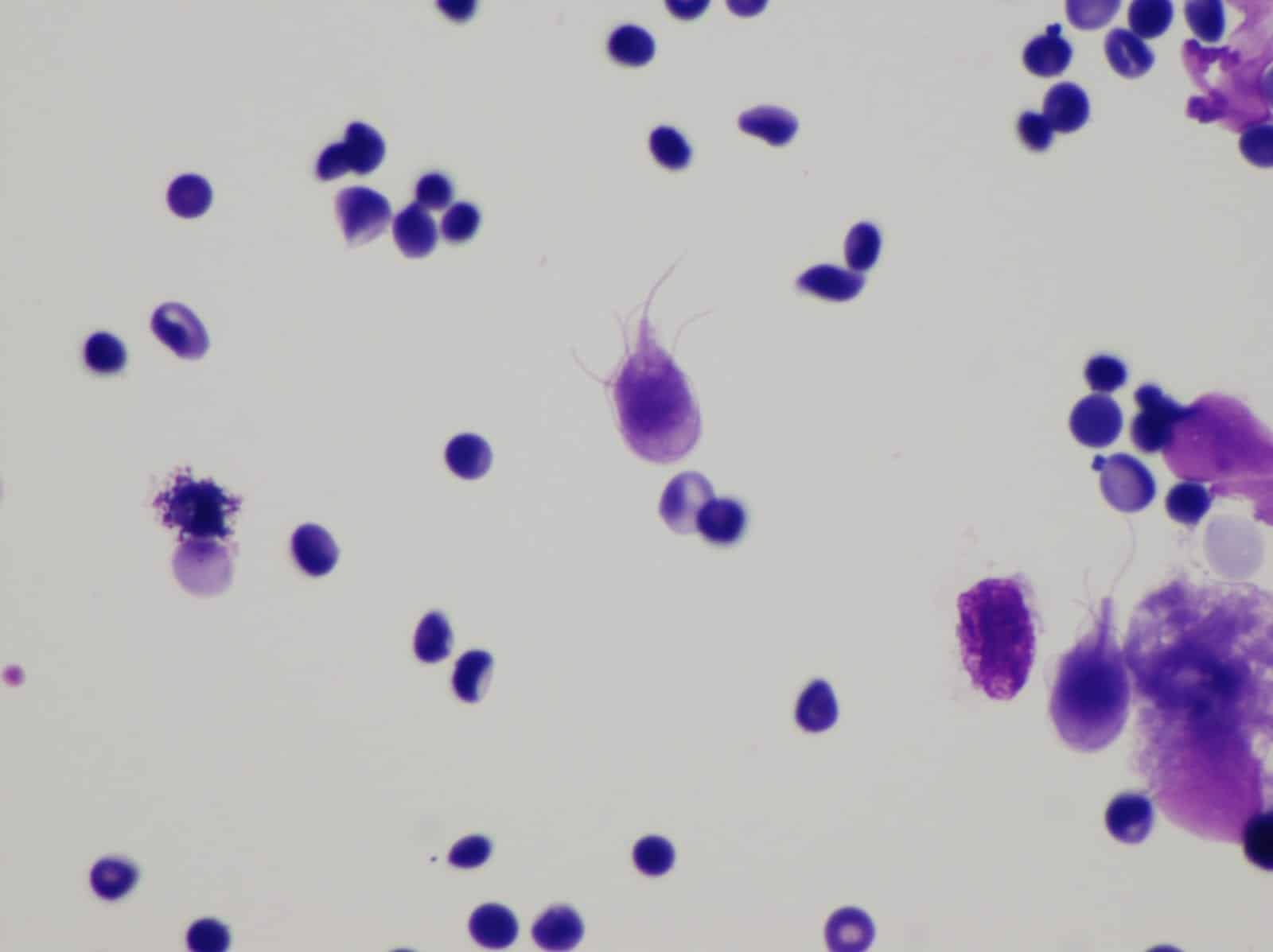 Giardia lamblia, giardia water filter